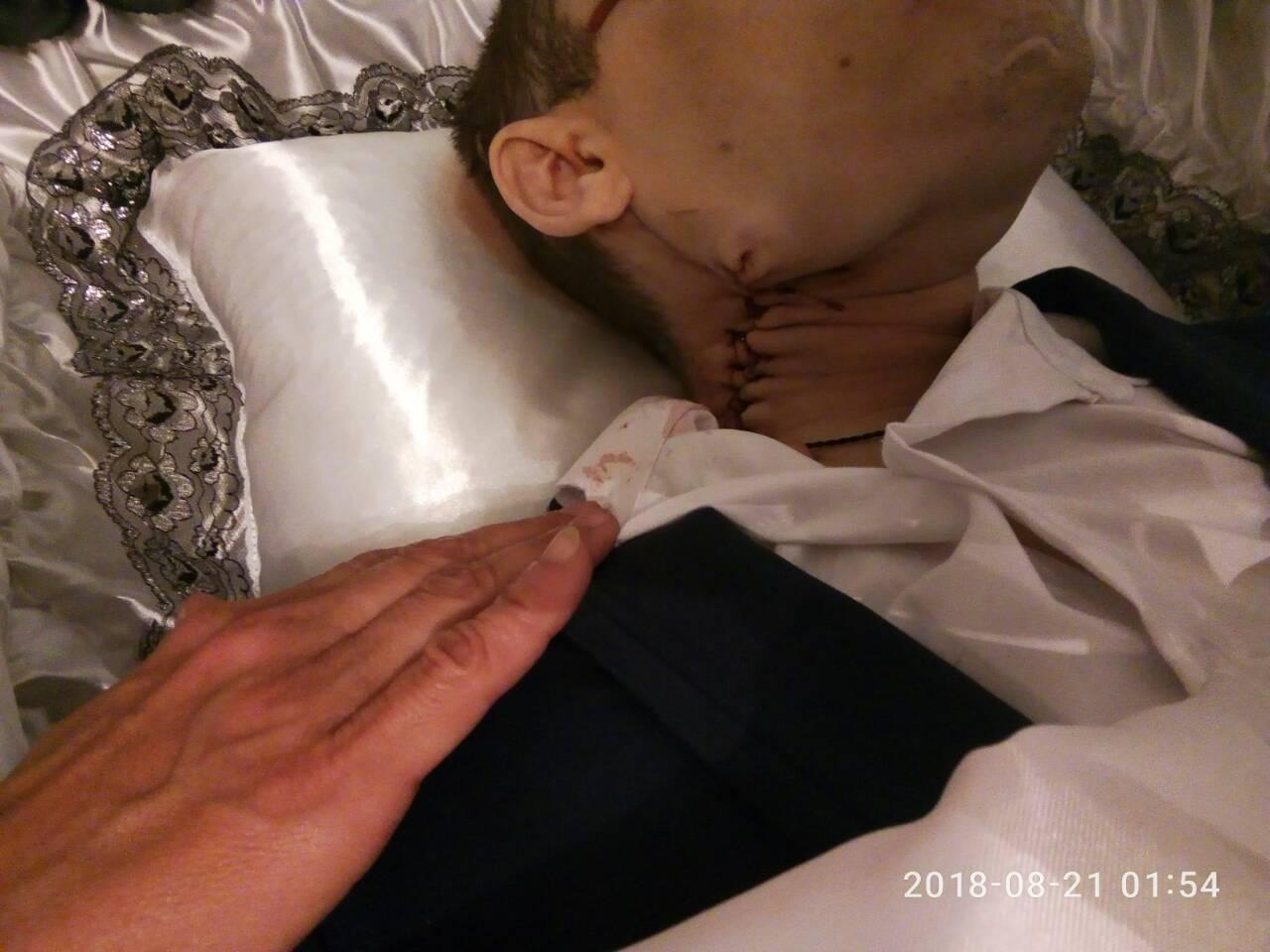 Заключенного Читинского СИЗО-1 обнаружили с перерезанным горлом