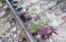 Молодому парню в Карымской почти отрезало ноги поездом