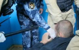 Читинцу пришлось удалить селезенку после избиения сотрудниками СИЗО. Он отсудил за это 300 тысяч рублей