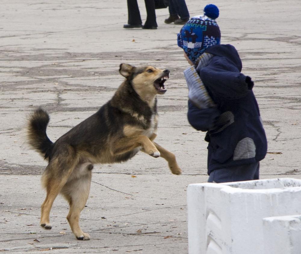 Прокуратура начала проверку по поводу нападения собак на 10-летнего мальчика в Чите