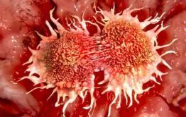 Дульдургинская ЦРБ поставила забайкальцу пневмонию вместо рака