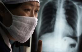 В Дудьдургинском районе мать и сын с открытой формой туберкулеза не хотели лечиться