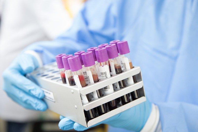 Специалисты обследовали забайкальцев, контактировавших с зараженными коронавирусом. Анализы отрицательные
