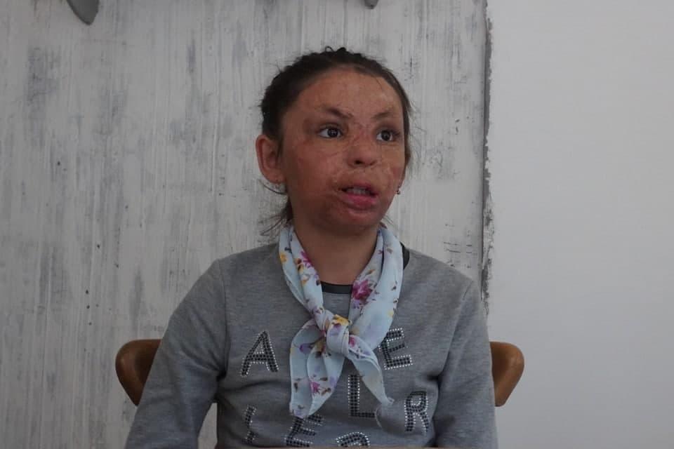 Уроженец Забайкалья бесплатно сделал четырнадцать пластических операций ребенку